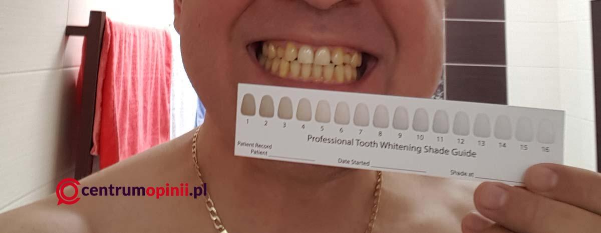 Style White wybielacz zębów opinie