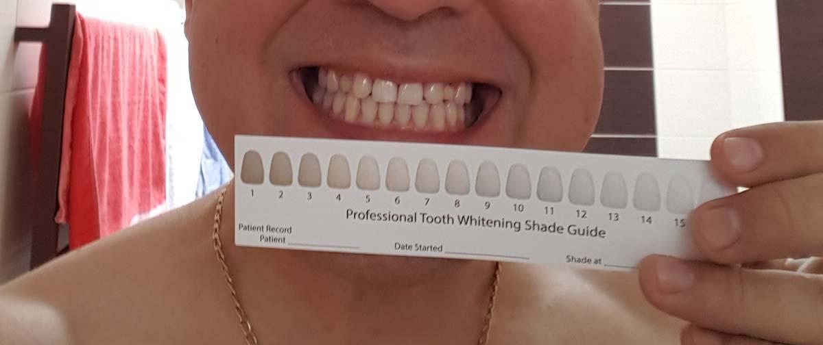 Wybielanie zębów Style white efekty i test