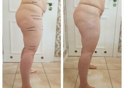 redukcja-cellulitu-ciechanow